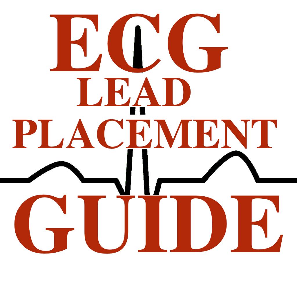 12 lead interpretation chart furthermore ekg ecg lead placement on